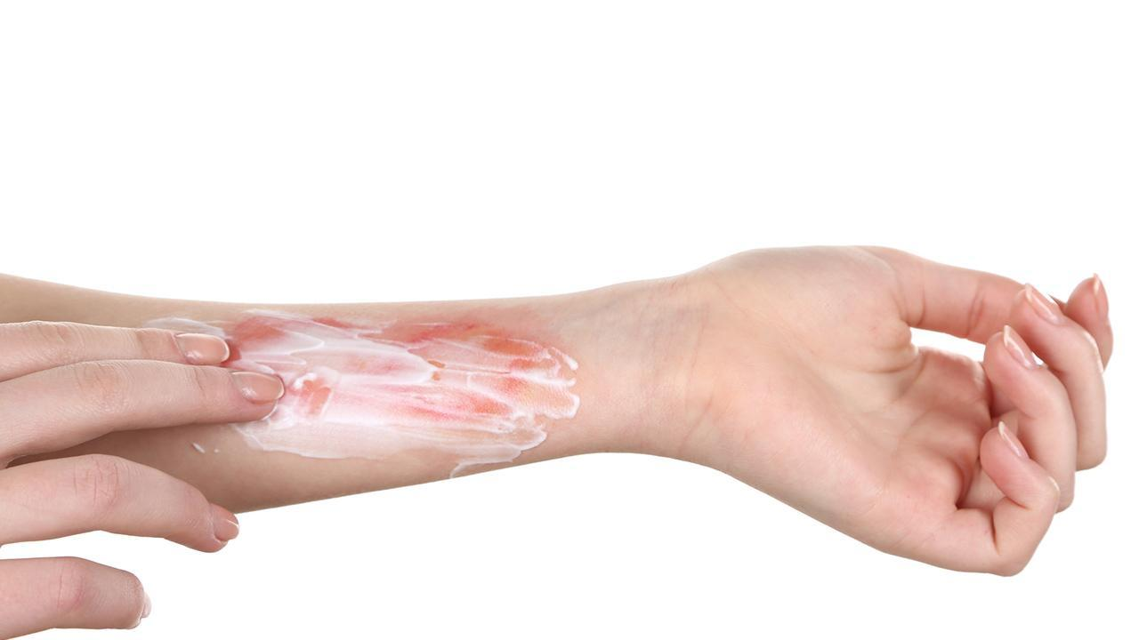 Household remedy against burns / burn injuries is smeared with a cream